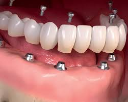 Full Mouth Dental Implant
