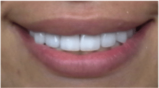 Chipped Teeth restoration