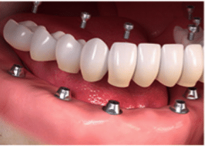 Full arch/mouth dental implants-1