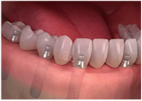 Full arch/mouth dental implants-2