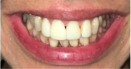before with yellow uneven teeth