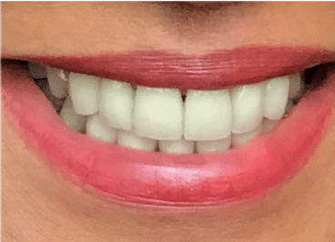 After with smile cosmetics restored