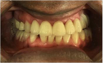 Missing Teeth Restored