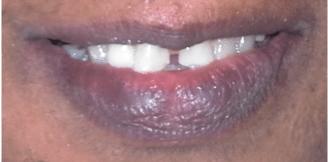 Cracked Teeth