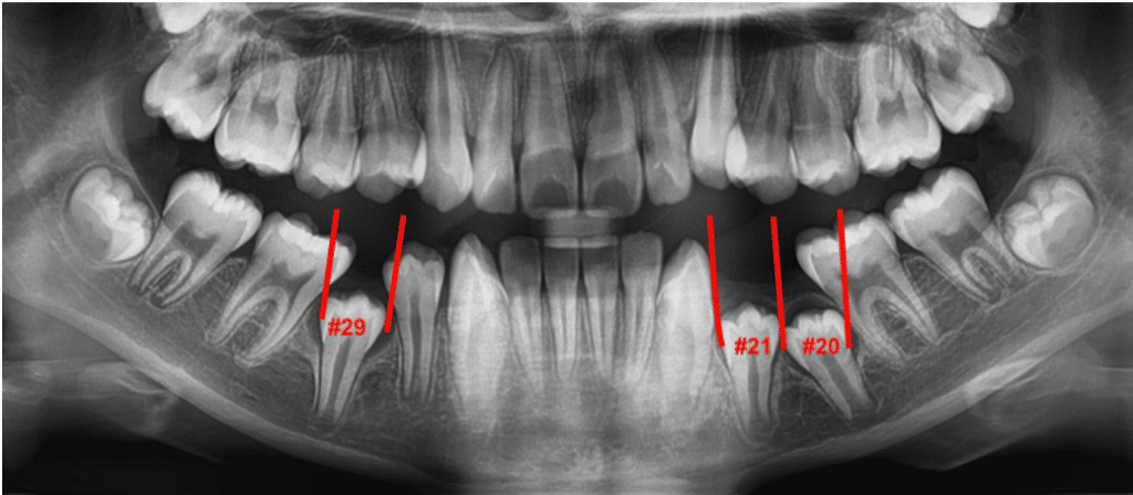 Baby Teeth Scan