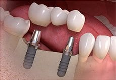 bridge suppoted by multiple implants