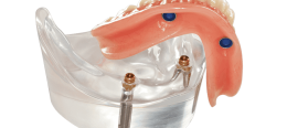 "Implant Supported Overdenture: ""It's a SNAP""!"