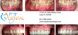 Change Your Life Forever with a Complete Smile Makeover