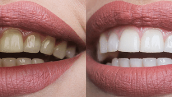 Teeth whitening will make you more confident when you smile.
