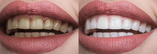 Read more about the article Teeth whitening will make you more confident when you smile.