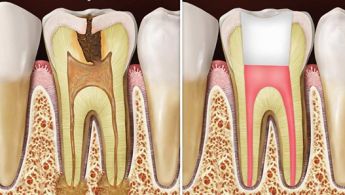 Root canals can save your teeth and your life.