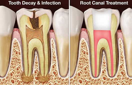 Read more about the article Root canals can save your teeth and your life.