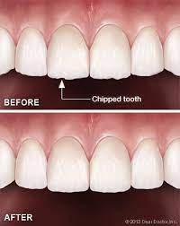 Tooth Contouring & Reshaping - Dentist The Villages   Oral Surgeon Florida    Dentist Office 32159