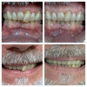 Read more about the article Do you want to smile again? Consider Teeth Reshaping