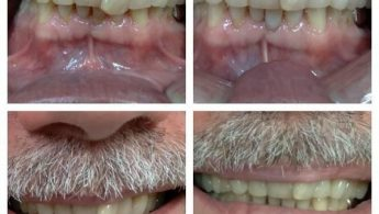 Do you want to smile again? Consider Teeth Reshaping