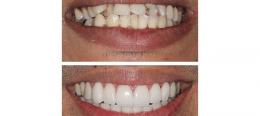 Do you want to make your ugly teeth look perfect?