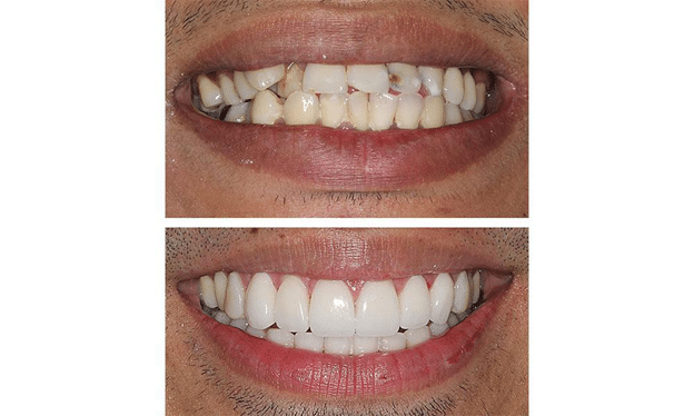 Read more about the article Do you want to make your ugly teeth look perfect?
