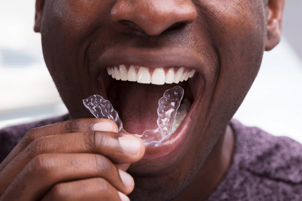 Do you want to sleep better and have less headaches? Have you tried a Mouth Guard?