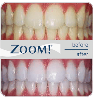 Zoom your way to white teeth.