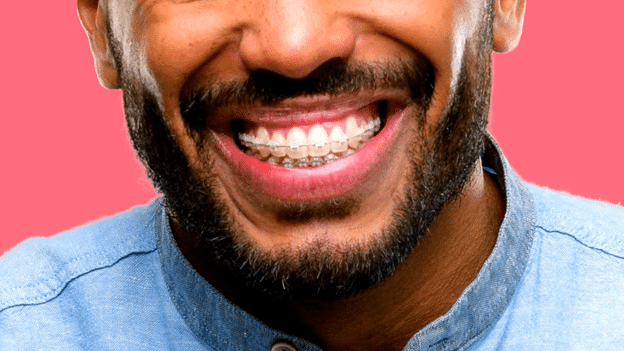 You're never too old to fix your smile with braces.